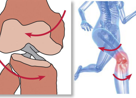 sports injury while running