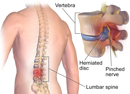 Lower back pinched nerve